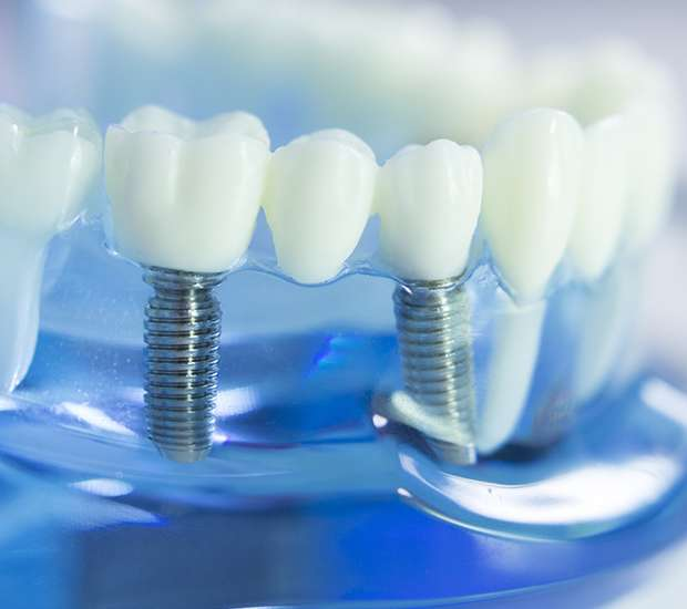 Gainesville Dental Implants